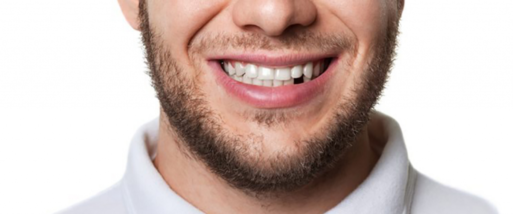 Were you born with a missing tooth? You're not alone!
