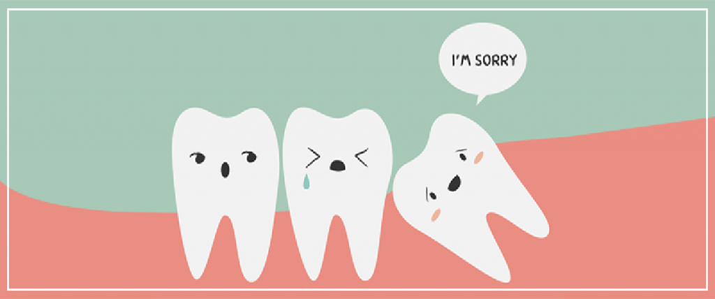 Can all of your wisdom teeth be removed at the same time?