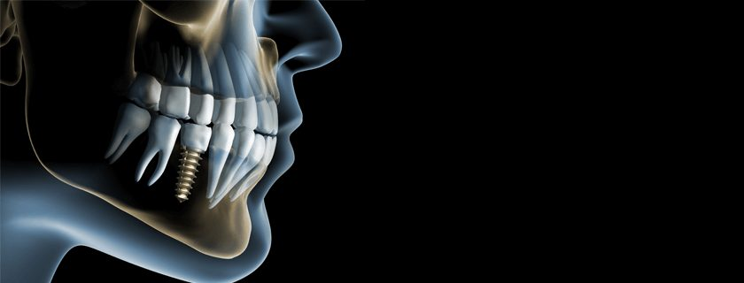 How Old is too Old for Dental Implants?