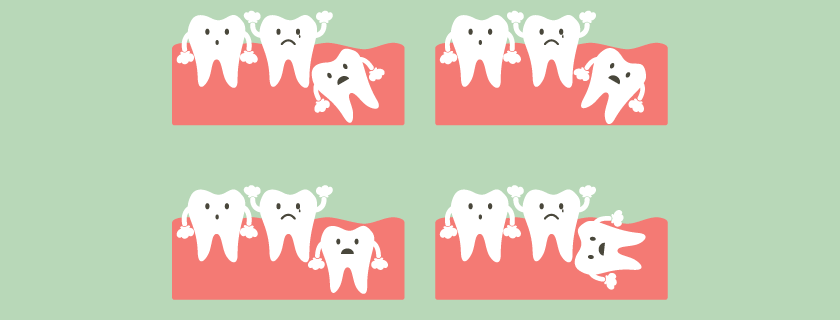 Wisdom Teeth Extraction: What to expect during recovery process