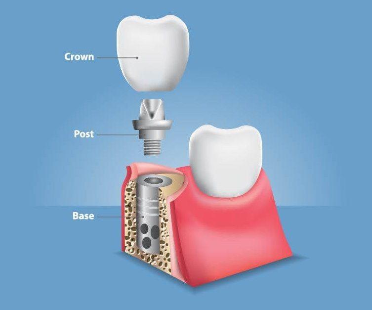 implant og