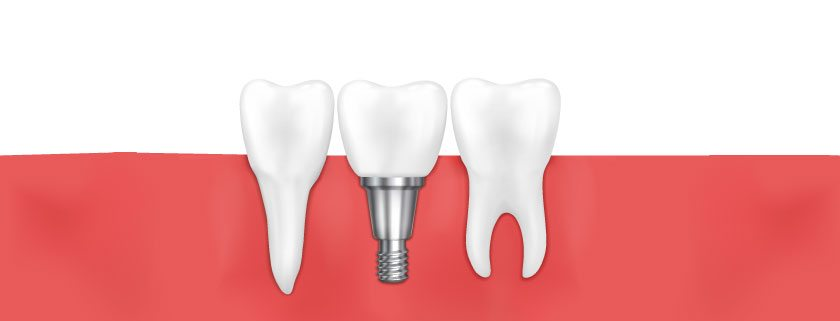 6 FAQs about Dental Implants