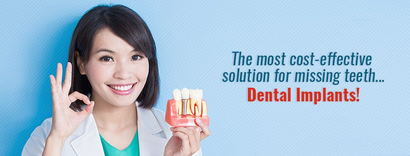 Dental Implants are a cost-effective investment for your health