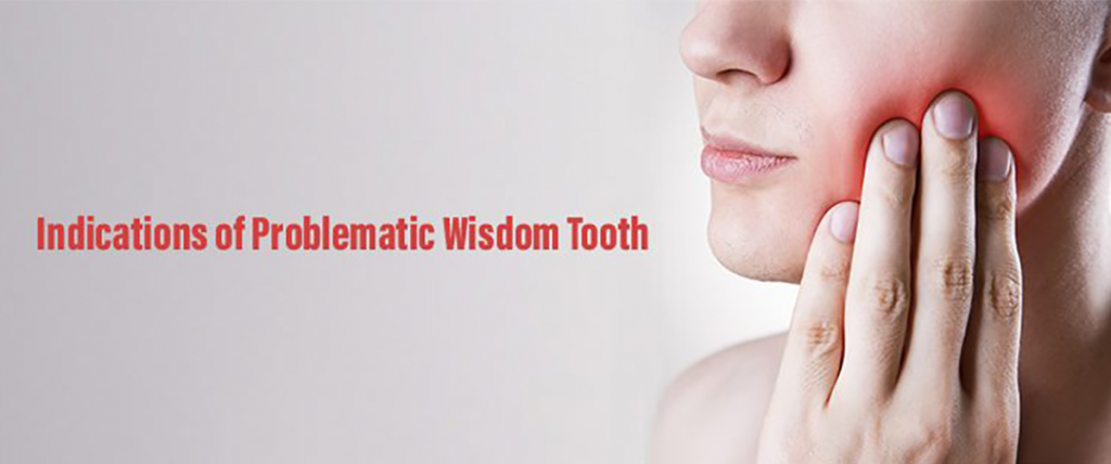 Indications of Problematic Wisdom Tooth