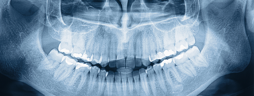 Best treatments available for a dental bone loss?