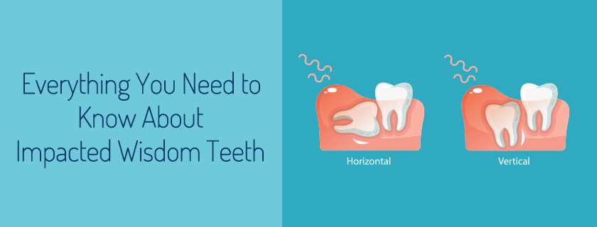 Everything You Need to Know About Impacted Wisdom Teeth