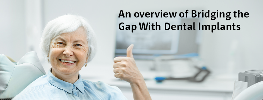 Bridging the Gap with Dental Implants