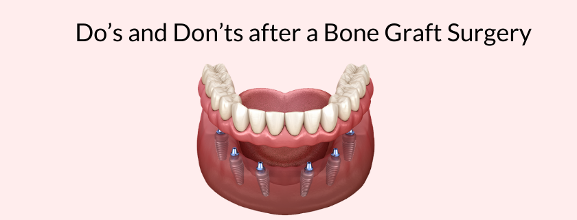 Do's and Don'ts after a Bone Graft Surgery